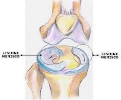 artro.ginocchio2