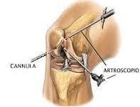 artro.ginocchio3